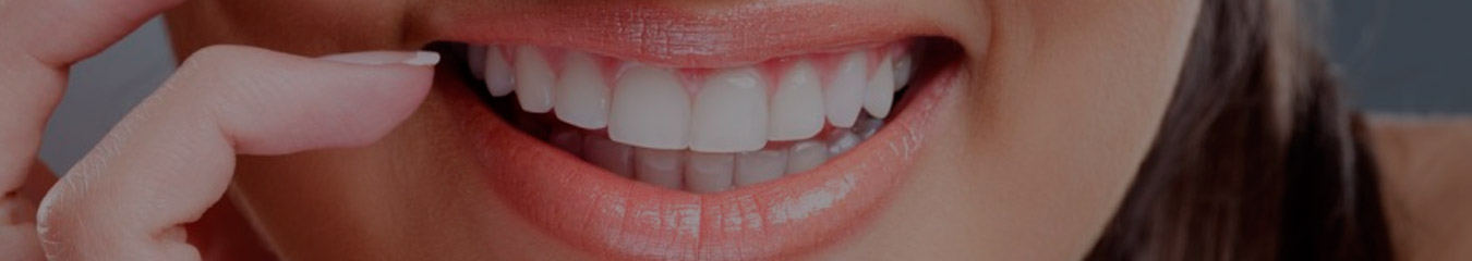 Teeth_Whitening_header